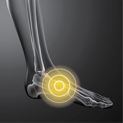 X-ray image of foot highlighted with a yellow circle