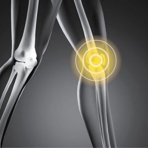 Total Knee Replacement Surgery Laramie WY