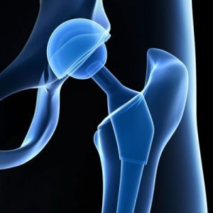 Total Hip Replacement Laramie WY