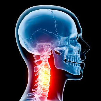 X-ray of of neck with red pain