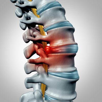 graphic of a herniated disc